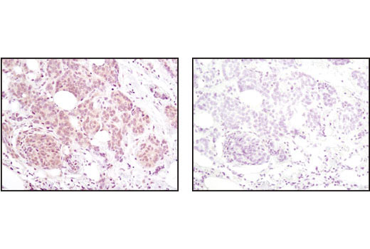 Immunohistochemical analysis of paraffin-embedded human breast carcinoma using Akt (pan) (40D4) Mouse mAb in the presence of control peptide (left) or Akt (pan) Blocking Peptide #1085 (right).
