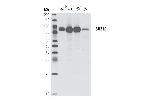 Image 34: Polycomb Group 2 (PRC2) Antibody Sampler Kit