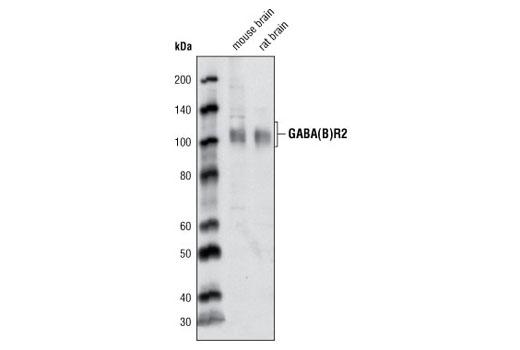 Polyclonal Antibody - GABA(B)R2 Antibody - Immunoprecipitation, Western Blotting, UniProt ID O75899, Entrez ID 9568 #3839, Gaba(B)R2