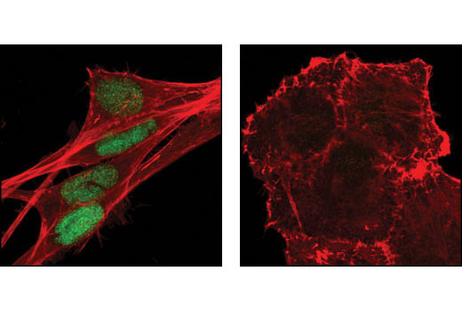 Confocal immunofluorescent analysis of A204 cells (left) and PANC-1 cells (right) using Slug (C19G7) Rabbit mAb (green). Actin filaments have been labeled with DY554 phalloidin (red).