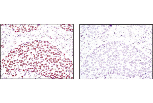 Immunohistochemical analysis of paraffin-embedded human breast carcinoma using TIF1β (C42G12) Rabbit mAb in the presence of control peptide (left) or antigen-specific peptide (right).