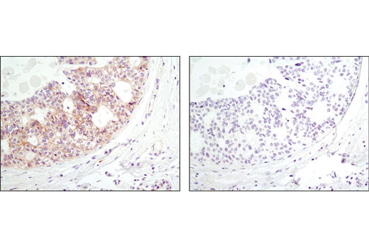 Blocking Peptide Immunohistochemistry Paraffin Mammary Gland Development - count 3