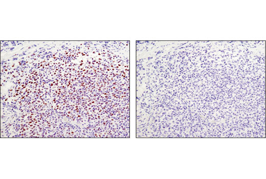Image 45: Polycomb Group Antibody Sampler Kit