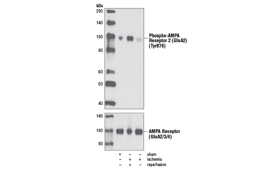 Western blot analysis of extracts from rat brain, either sham-operated, 15 min ischemia followed by 4 h reperfusion or 15 min ischemia only, using Phospho-AMPA Receptor 2 (GluA2) (Tyr876) Antibody (upper) or AMPA Receptor (GluA2/3/4) Antibody #2460 (lower).