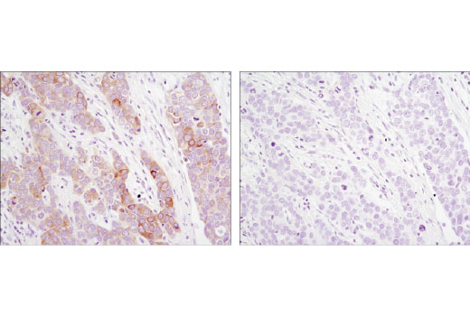 Immunohistochemical analysis of paraffin-embedded human breast carcinoma using DHCR24/Seladin-1 (C59D8) Rabbit mAb in the presence of control peptide (left) or antigen-specific peptide (right).