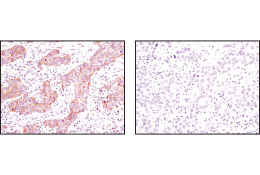 Immunohistochemical analysis of paraffin-embedded human breast carcinoma using Calnexin (C5C9) Rabbit mAb in the presence of control peptide (left) or antigen-specific peptide (right).
