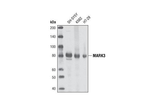 Polyclonal Antibody - MARK3 Antibody - Immunoprecipitation, Western Blotting, UniProt ID P27448, Entrez ID 4140 #9311