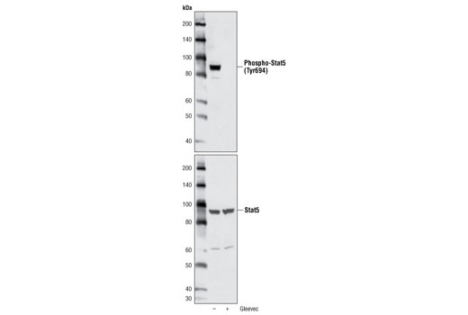 Western blot analysis of extracts from K562, untreated or treated with Gleevec for 1 hour, using Phospho-Stat5 (Tyr694) (C71E5) Rabbit mAb (upper) or Stat5 Antibody #9310 (lower).