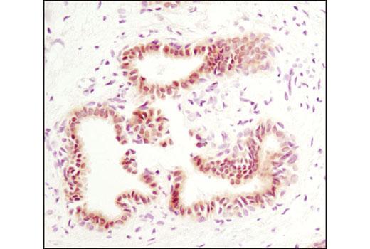 Immunohistochemical analysis of paraffin-embedded human breast carcinoma using Phospho-Stat5 (Tyr694) (C71E5) Rabbit mAb.