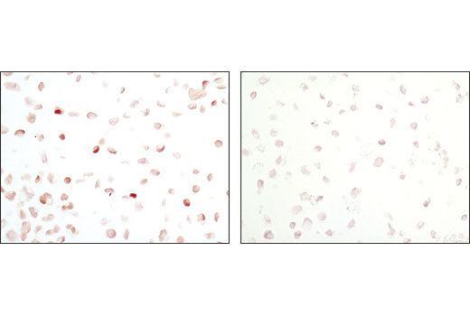 Immunohistochemical analysis of paraffin-embedded K562 cell pellets control (left) or STI-571-treated (right) using Phospho-Stat5 (Tyr694) Rabbit mAb.