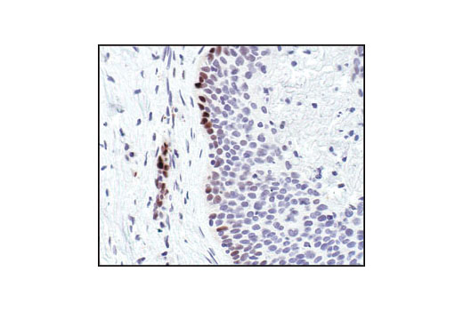 Immunnohistochemical analysis of paraffin-embedded human lung carcinoma, showing nuclear localization, using Phospho-Stat3 (Tyr705) (D3A7) XP<sup>®</sup> Rabbit mAb.