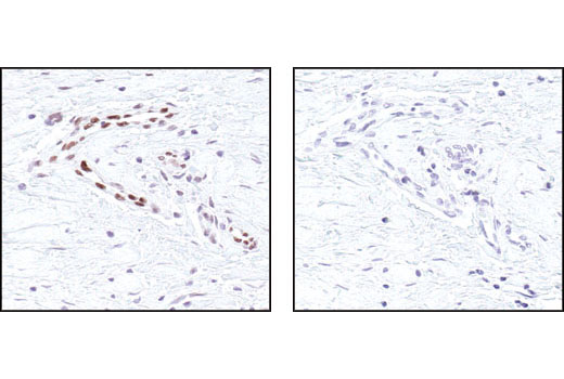 Immunohistochemical analysis of paraffin embedded human breast carcinoma, specifically endothelial cells, untreated (left) or lambda phosphatase treated (right), using Phospho-Stat3 (Tyr705) (D3A7) XP<sup>®</sup> Rabbit mAb.