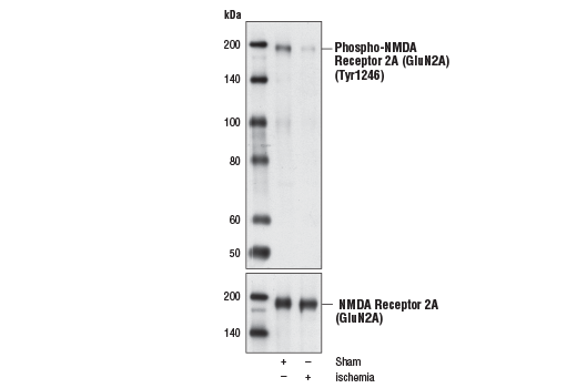 Polyclonal Antibody Immunoprecipitation Response to Amine Stimulus