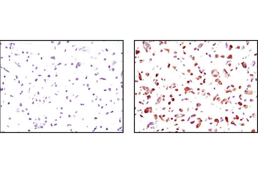Immunohistochemical analysis of paraffin-embedded HCC827 cells, untransfected (left) or GFP-transfected (right), using GFP (D5.1) XP<sup>®</sup> Rabbit mAb.