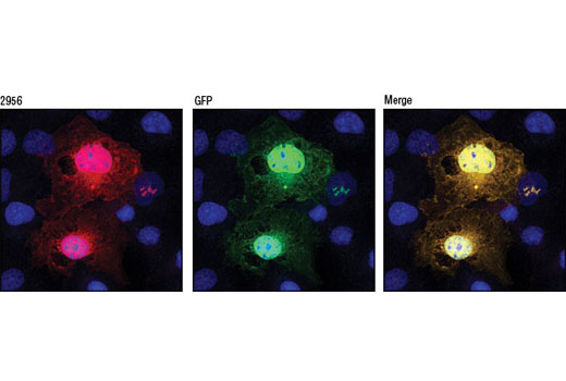 Confocal immunofluorescent analysis of COS-7 cells expressing a GFP-tagged fusion protein (green) using GFP (D5.1) XP<sup>®</sup> Rabbit mAb (red). Blue pseudocolor = DRAQ5<sup>®</sup> #4084 (fluorescent DNA dye).