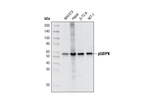 Monoclonal Antibody - p58IPK (C56E7) Rabbit mAb - Immunoprecipitation, Western Blotting, UniProt ID Q13217, Entrez ID 5611 #2940 - Protein Folding and Trafficking