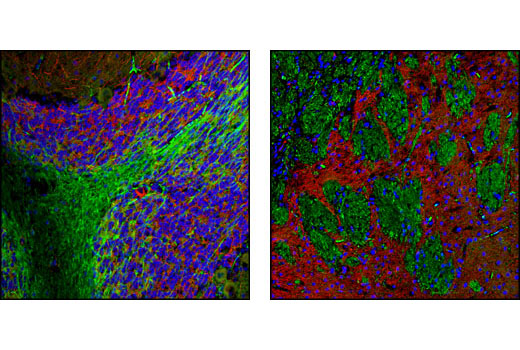 Confocal immunofluorescent analysis of rat cerebellum (left) and forebrain (right) using STOP (175) Mouse mAb (green) and MAP2 Antibody #4542 (red). Blue pseudocolor = DRAQ5<sup>®</sup> #4084 (fluorescent DNA dye).
