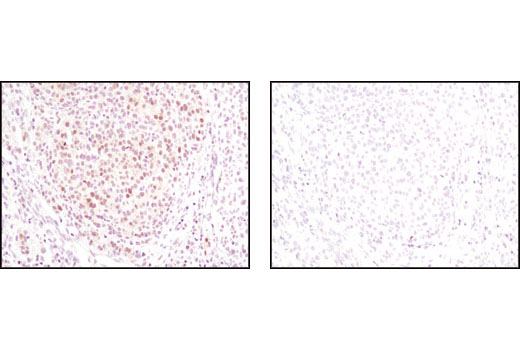 Immunohistochemical analysis of paraffin-embedded human melanoma using ASF1A (C6E10) Rabbit mAb in the presence of control peptide (left) or antigen specific peptide (right).