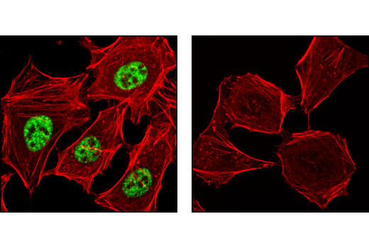 Confocal immunofluorescent analysis of HeLa cells, either untreated (left) or λ-phosphatase treated (right), using Phospho-SRC-3 (Thr24) Antibody (green). Actin filaments have been labeled with DY-554 phalloidin (red).