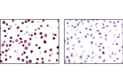 Immunohistochemical analysis of paraffin-embedded Colo205 (positive) (left) and HeLa (negative) (right) cell pellets using Lck (D88) XP<sup>®</sup> Rabbit mAb.