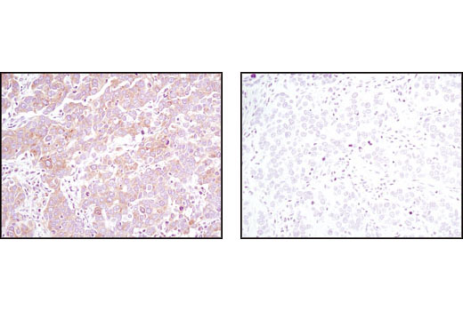 Immunohistochemical analysis of paraffin-embedded human breast carcinoma using Pyruvate Dehydrogenase (C54G1) Rabbit mAb in the presence of control peptide (left) or antigen-specific peptide (right).