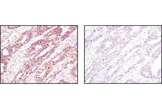Immunohistochemical analysis of paraffin-embedded human colon carcinoma using eIF6 Antibody in the presence of control peptide (left) or antigen-specific peptide (right).