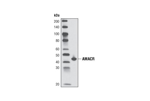 Western blot analysis of extracts from LNCaP cells using AMACR (2A10) Mouse mAb.