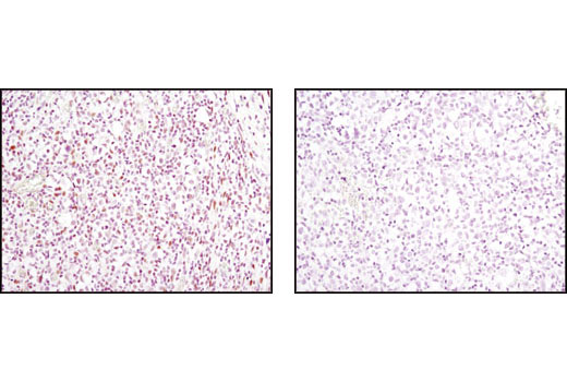Monoclonal Antibody Immunohistochemistry Paraffin Granulocyte Differentiation