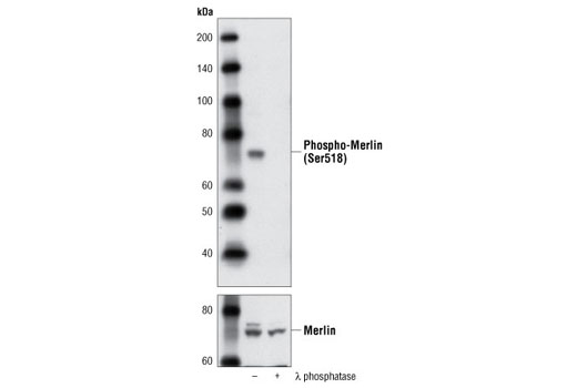 Western blot analysis of extracts from PC3 cells, untreated or treated with λ phosphatase, using Phospho-Merlin (Ser518) Antibody (upper) or Merlin Antibody #9168 (lower).