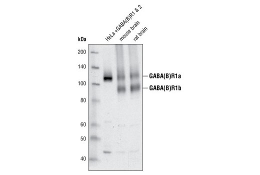 Western blot analysis of extracts from HeLa cells, co-transfected with constructs overexpressing GABA(B)R1 and GABA(B)R2, and mouse and rat brain using GABA(B)R1 Antibody.