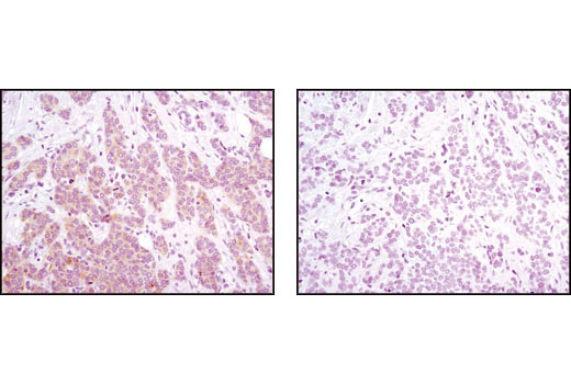 Immunohistochemical analysis of paraffin-embedded human breast carcinoma using Phospho-PRAS40 (Thr246) (C77D7) Rabbit mAb in the presence of control peptide (left) or antigen specific peptide (right).