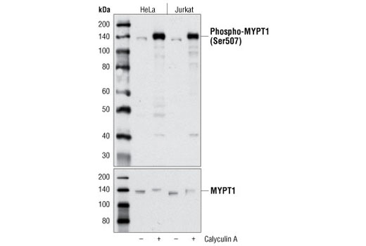 Western blot analysis of extracts from HeLa and Jurkat cells, untreated or treated with calyculin A #9902, using Phospho-MYPT1 (Ser507) Antibody (upper) or MYPT1 Antibody #2634 (lower).