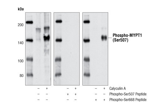 Western blot analysis of extracts from HeLa cells, untreated or treated with Calyculin A #9902, using Phospho-MYPT1 (Ser507) Antibody. The phospho-specificity of the antibody was verified by peptide blocking using no peptide (left), phospho-Ser507 peptide (middle) or phospho-Ser668 peptide (right).