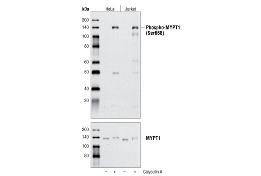 Western blot analysis of extracts from HeLa and Jurkat cells, untreated or treated with Calyculin A #9902, using Phospho-MYPT1 (Ser668) Antibody (upper) or total MYPT1 Antibody #2634 (lower).