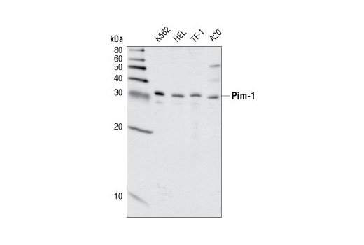 Image 1: Pim Kinase Antibody Sampler Kit