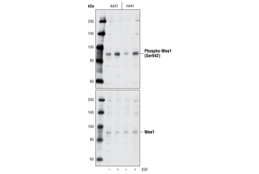 Monoclonal Antibody - Phospho-Wee1 (Ser642) (D47G5) Rabbit mAb, UniProt ID P30291, Entrez ID 7465 #4910 - Cell Cycle / Checkpoint Control