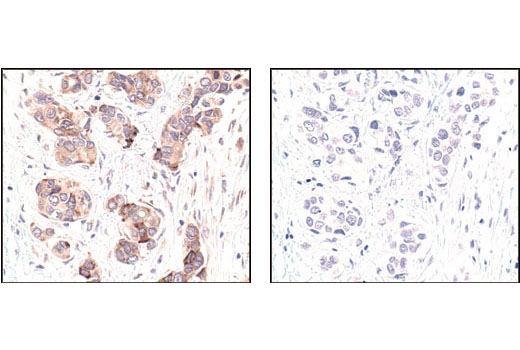 Immunohistochemical analysis of paraffin-embedded human breast carcinoma, using GβL Antibody in the presence of control peptide (left) or antigen specific peptide (right).