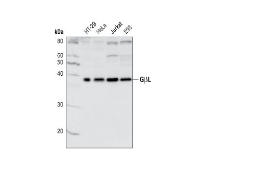 Western blot analysis of extracts from various cell lines, using GβL Antibody.
