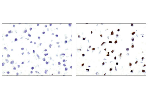 Immunohistochemical analysis using Phospho-Stat3 (Tyr705) (M9C6) Mouse mAb on SignalSlide® HeLa -/+ IFNa IHC Controls #55861 (paraffin-embedded HeLa cell pellets, untreated (left) or treated with Human Interferon-α1 (hIFN-α1) #8927 (right)).