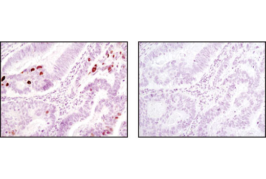 Immunohistochemical analysis of paraffin-embedded human colon carcinoma, control (left) or λ phosphatase-treated (right), using Phospho-Chk2 (Thr68) (C13C1) Rabbit mAb.