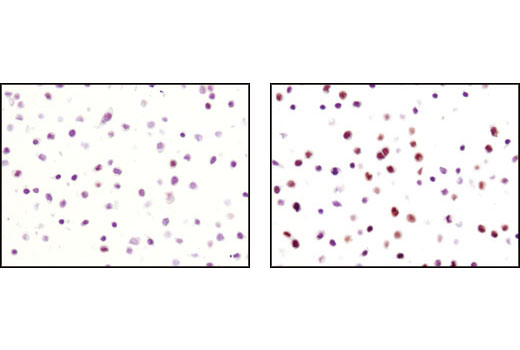 Image 22: Cell Cycle/Checkpoint Antibody Sampler Kit