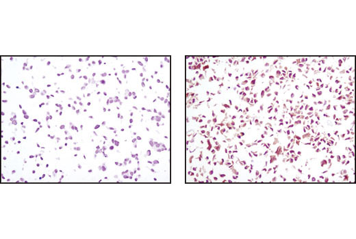 Immunohistochemical analysis using PTEN (D4.3) XP<sup>®</sup> Rabbit mAb on SignalSlide(TM) PTEN IHC Controls #8106 (paraffin-embedded LNCaP (left) and NIH/3T3 (right) cells).