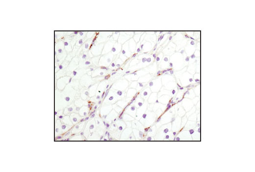 Immunohistochemical analysis of paraffin-embedded human clear cell carcinoma using CD31 (PECAM-1) (89C2) Mouse mAb.