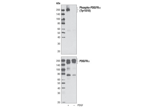 Western blot analysis of cell extracts from NIH/3T3 cells, untreated or treated with PDGF-AA, using Phospho-PDGF Receptor α (Tyr1018) Antibody (upper) or PDGF Receptor α Antibody #3164 (lower).
