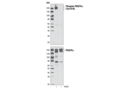Polyclonal Antibody - Phospho-PDGF Receptor α (Tyr1018) Antibody, UniProt ID P16234, Entrez ID 5156 #4547, Angiogenesis