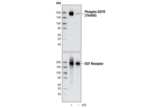 Western blot analysis of extracts of A431 cells, untreated or stimulated with EGF, using Phospho-EGF Receptor (Thr669) Antibody (upper) or EGF Receptor Antibody #2232 (lower).