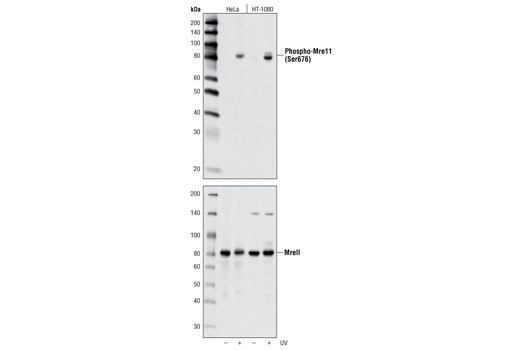 Western blot analysis of extracts from HeLa and HT-1080 cells, untreated or treated with UV, using Phospho-Mre11 (Ser676) Antibody (upper) or total Mre11 Antibody #4895 (lower).
