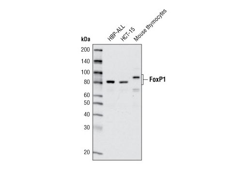 Western blot analysis of extracts from HBP-ALL cells, HCT-15 cells and mouse thymocytes using FoxP1 Antibody.