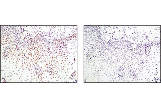 Immunohistochemical analysis of paraffin-embedded human tonsil epithelium using FoxP1 Antibody in the presence of control peptide (left) or antigen-specific peptide (right).