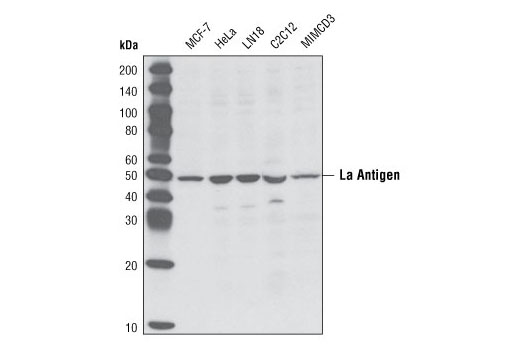 Western blot analysis of extracts from various cell types using La Antigen Antibody.